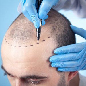 1 Dirham Hair Transplant