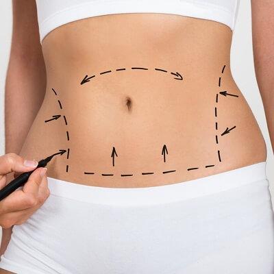 Liposuction in Dubai & Abu Dhabi Royal Clinic Dubai