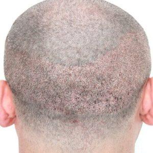 Turkish Hair Transplant in Dubai UAE